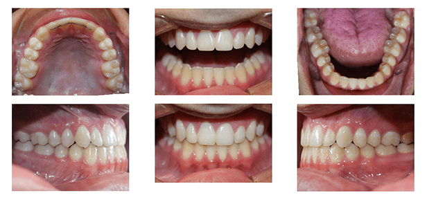 Spacing Due to Smaller Tooth Size Before and After