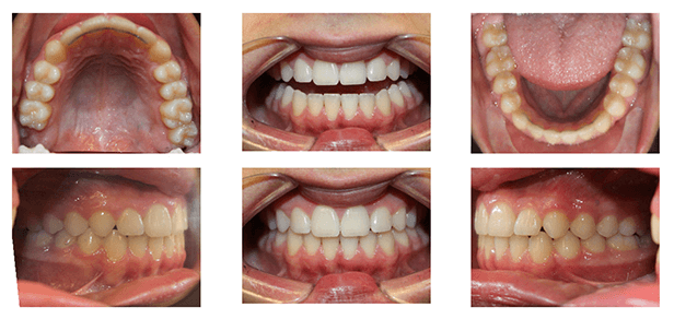 Crowding with a Deep Overbite Before and After
