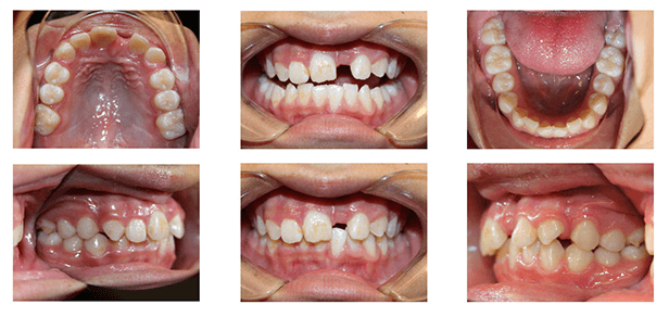 Missing Tooth Before and After